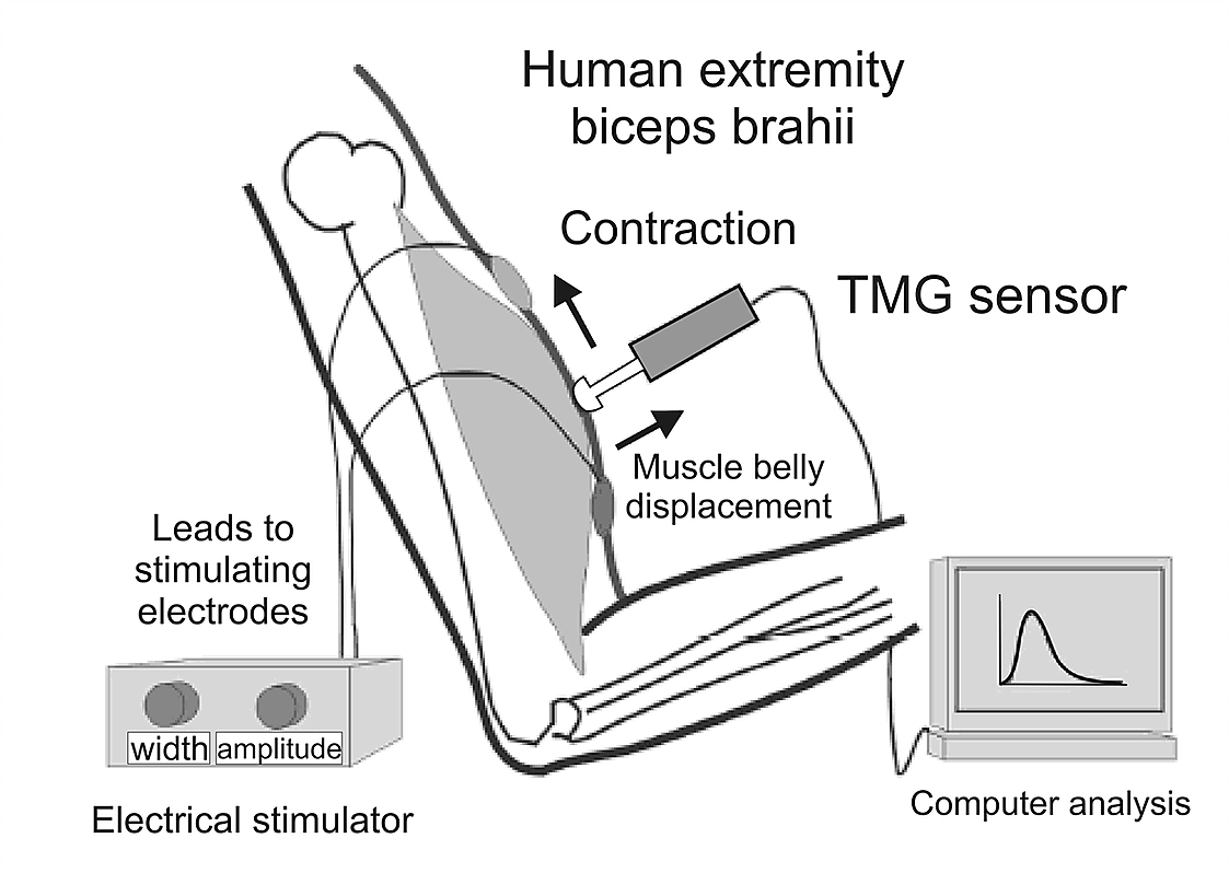 tmg-tensiomyography-measurement